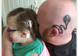 This Father gets a Cochlear tattoo on his head to support his Deaf Daughter